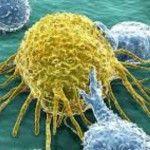 Foto: Planta care distruge 98% din celulele canceroase