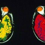 Foto: Studiu. Cei cu o anumită grupă de sânge au mai multă materie cenușie
