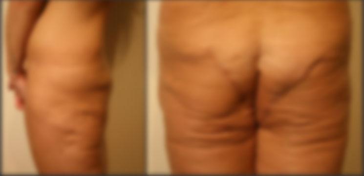 Foto: Și-a operat posteriorul pentru a-l avea mai bombat, dar a rămas cu două cicatrice imense!
