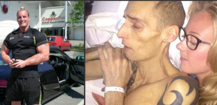 Foto: Un culturist a murit de cancer din cauza regimului său alimentar
