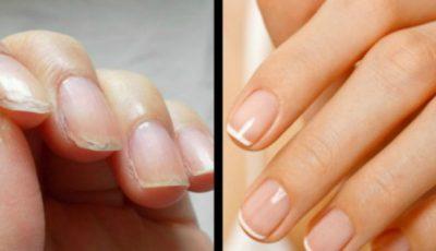 Tratamentul minune pentru unghiile fragile!