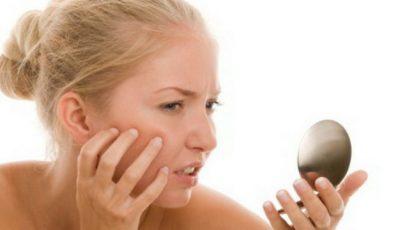 3 alimente care te scapă de acnee!