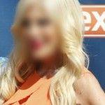 Foto: O actriță, surprinsă cu fața roșie și plină de pete!