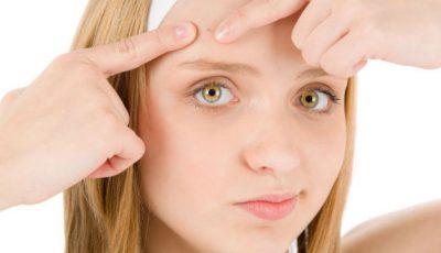 Alimente sănătoase care înrăutăţesc acneea