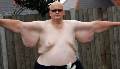 A slăbit 300 de kg, iar apoi s-a despărțit de iubită!