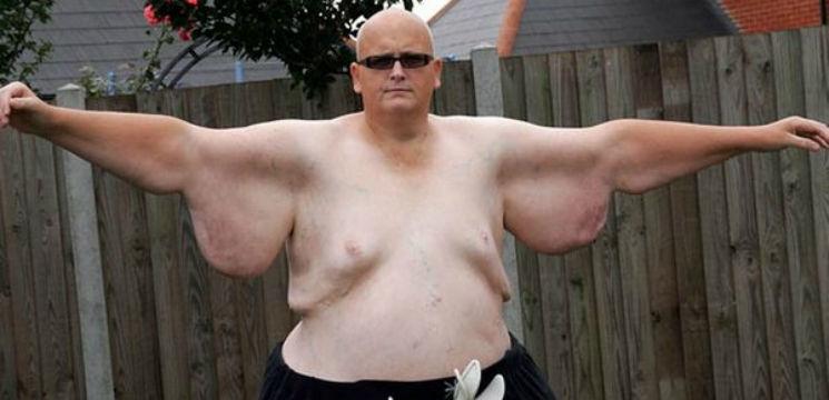 Foto: A slăbit 300 de kg, iar apoi s-a despărțit de iubită!