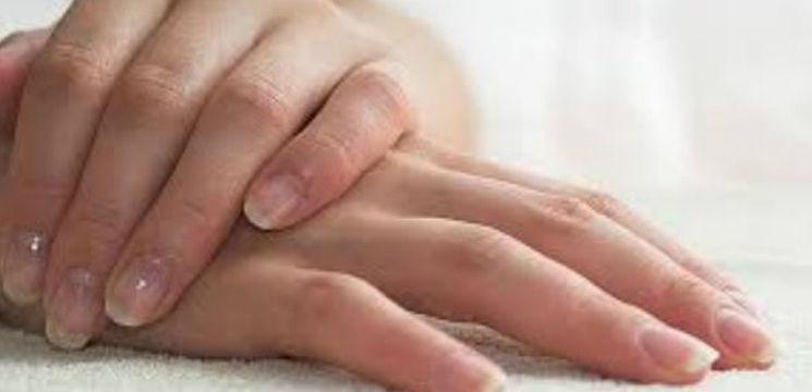 Foto: Privește-ți unghiile și află de ce boală suferi
