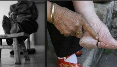 Foto. Un simbol al frumuseţii – picioarele schingiuite ale femeilor din China