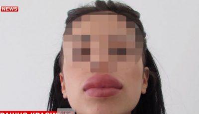 Mai multe rusoaice au ajuns pe patul de spital după ce și-au injectat buzele!