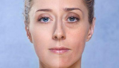 Cearcăne și linii vineții sub ochi? 3 remedii