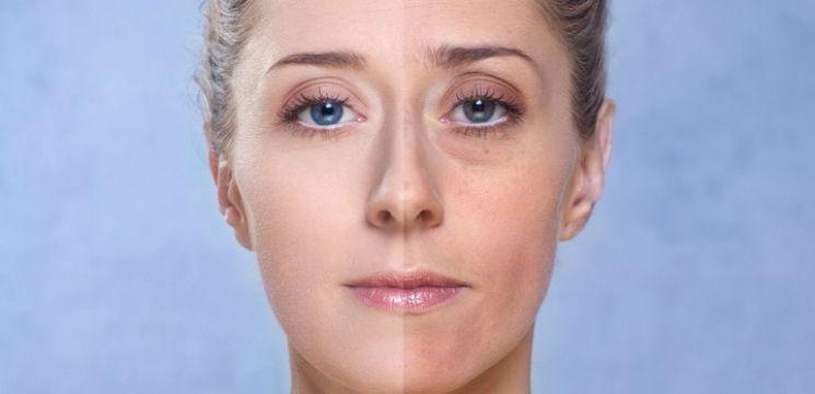 Foto: Cearcăne și linii vineții sub ochi? 3 remedii