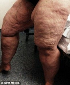 2E18001F00000578-3303228-The_condition_caused_her_legs_and_arms_to_gain_weight_despite_he-m-22_1446630376810