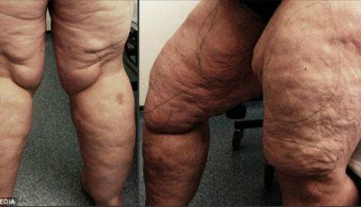 Cum arată picioarele acestei femei după ce medicii i-au extras 12 litri de grăsime!
