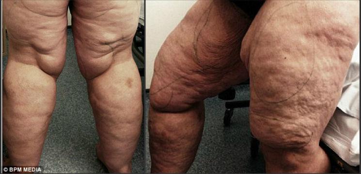Foto: Cum arată picioarele acestei femei după ce medicii i-au extras 12 litri de grăsime!