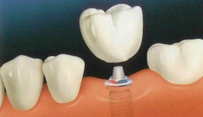 Tot ce trebuie să ştii despre un implant dentar