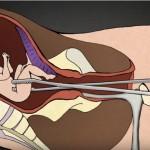 Foto: Un medic a făcut 1200 de avorturi. Acum dorește să arate lumii ce este de fapt un avort