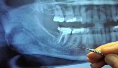 Legătura dintre cancer şi obturaţiile dentare există?
