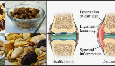 Tratament natural din miere şi seminţe pentru întărirea oaselor şi combaterea durerile articulare