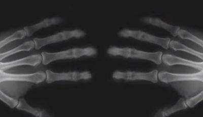 Ai obiceiul să-ţi trosneşti degetele? Vezi ce se întâmplă cu articulaţiile tale în acest caz
