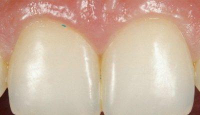 Îngrozitor! Ce i-a găsit medicul unei tinere sub gingie la un control de rutină? Şi tu foloseşti asta zilnic