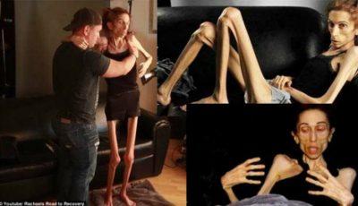 Anorexica de 18 kilograme care cerea ajutor și-a revenit miraculos!