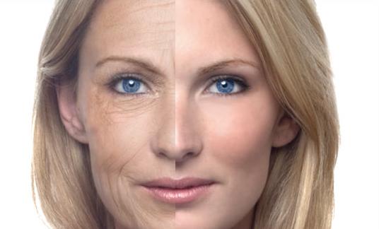 get-rid-of-wrinkles.jpg