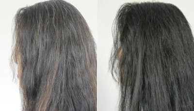 Gena responsabilă de încărunţirea părului a fost identificată