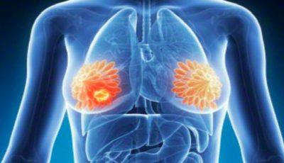 Revoluţie în medicină! Un medicament nou distruge cancerul de sân în zece zile