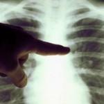 Foto: Zilnic, 10 moldoveni se îmbolnăvesc de tuberculoză