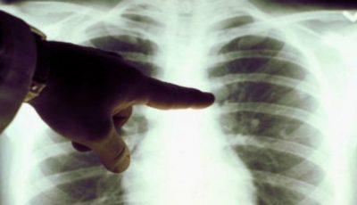 Zilnic, 10 moldoveni se îmbolnăvesc de tuberculoză