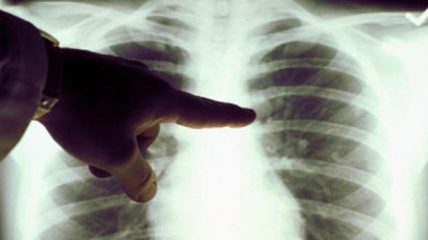 tuberculoza-simptome-si-tratament-18484232