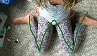 De ce poziţia ,,W'' nu este recomandată copiilor pentru şezut