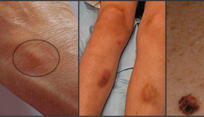 Atenţie! Primele semne de cancer apar pe piele