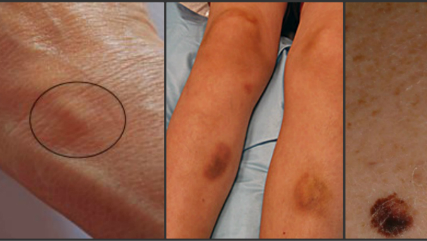 cancerul de piele debut