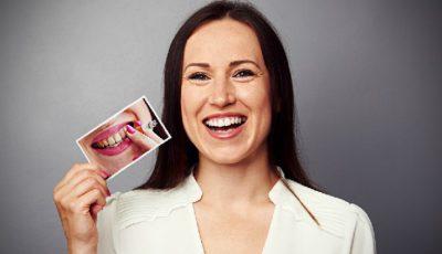 Metoda naturală care îți albește dinții și îi scapă de tartru!