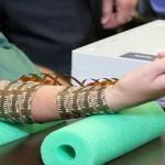 Foto: Un pacient a putut să-şi mişte braţul paralizat, datorită unui microcip implantat în creier!