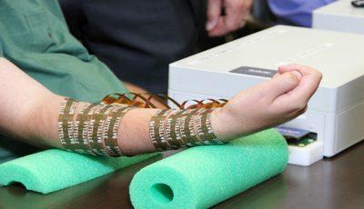 Un pacient a putut să-şi mişte braţul paralizat, datorită unui microcip implantat în creier!