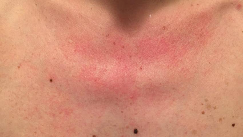 Foto: De ce îţi apar pete roşii pe piept după ce faci duş