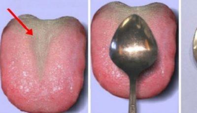 Cum te ajută ,,testul lingurii'' să îţi verifici starea de sănătate a corpului