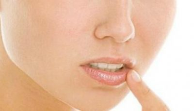 Cum scapi rapid de crăpăturile ce apar în colţurile gurii
