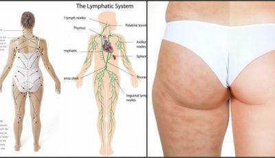 Metode eficiente de îmbunătăţire a circulaţiei limfei
