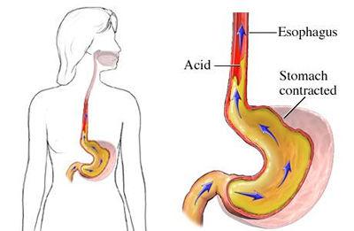 gastroesophageal_reflux