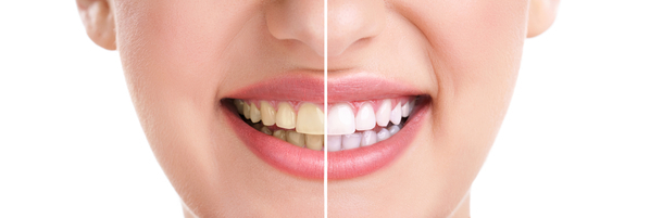 woman teeth and smile, close up, isolated on white, whitening treatment