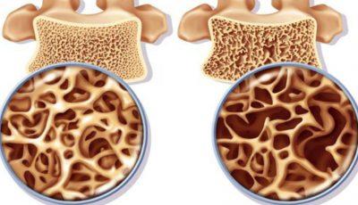 Semne care îți arată că ai lipsă de calciu în organism