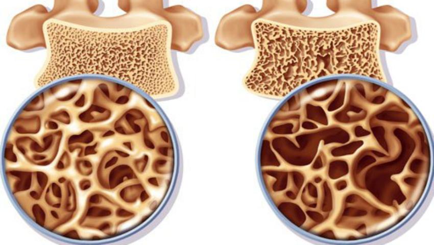 Foto: Semne care îți arată că ai lipsă de calciu în organism
