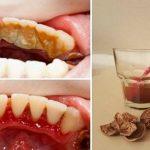 Foto: Scapă de tartrul dentar cu ajutorul unei metode simple