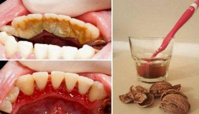Scapă de tartrul dentar cu ajutorul unei metode simple