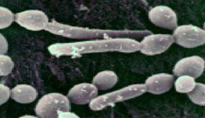 Ciuperca, responsabilă de apariţia celor mai frecvente infecţii vaginale, poate provoca boli psihice!