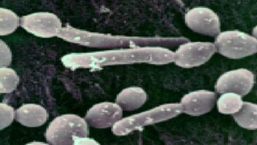 Foto: Ciuperca, responsabilă de apariţia celor mai frecvente infecţii vaginale, poate provoca boli psihice!