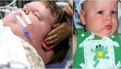 Acest copilaş cântărea enorm la doar 15 ani! Vezi cum a fost salvat de către medici în ultima clipă